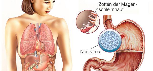 Norovirus im Ferienlager